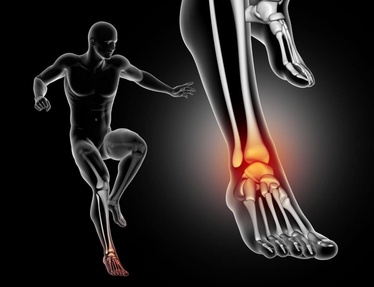 anterior ankle impingement treatment in dallas front ankle pain